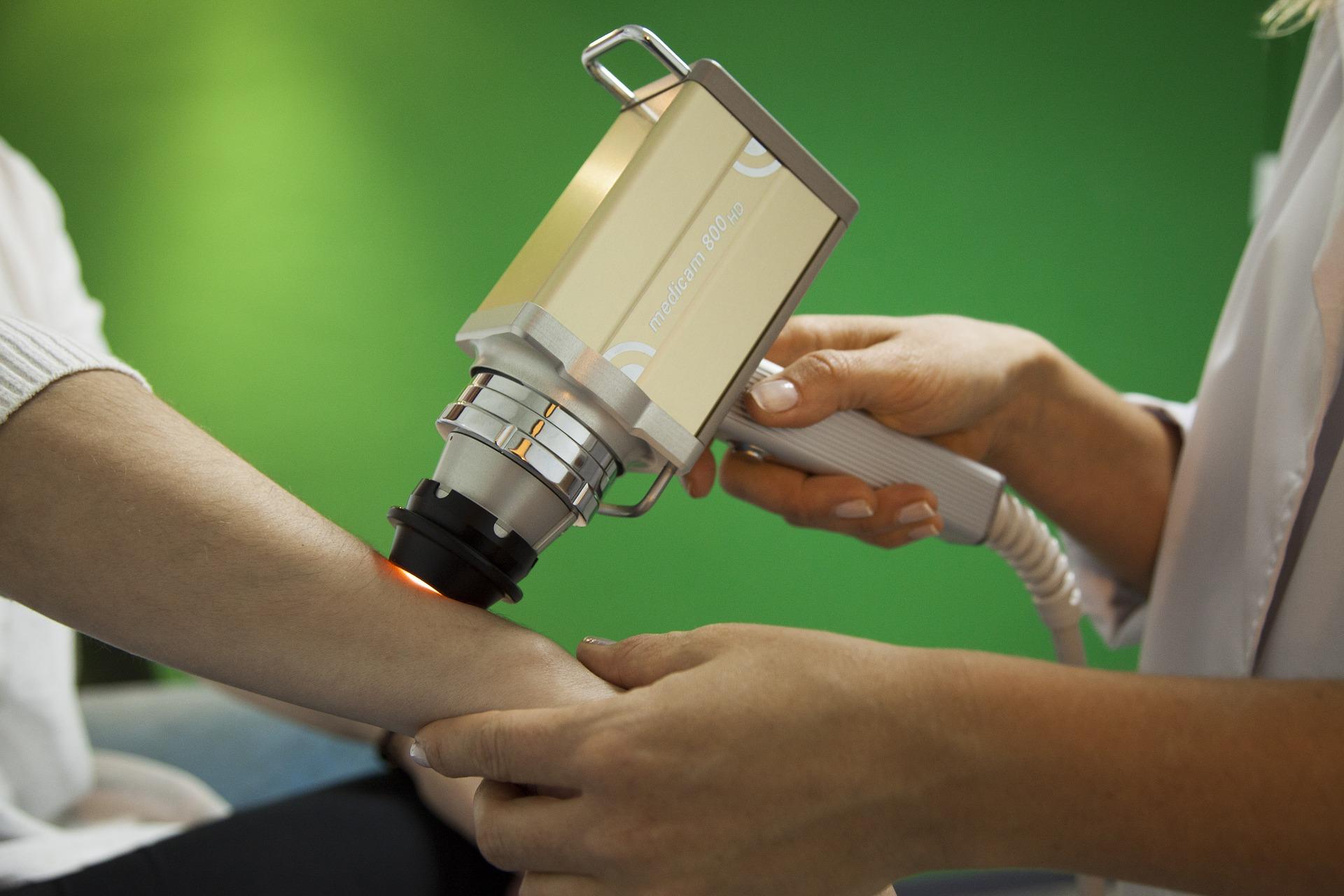 Jak wygląda leczenie laserem